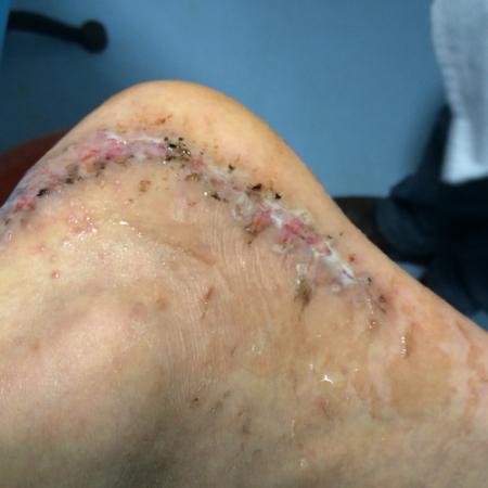 跟骨取钢板后伤口真菌感染了像脚气一样一个月了流血