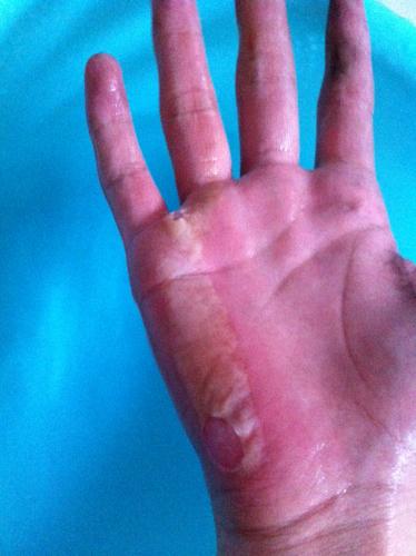 手被蒸烫伤怎么办_手被摩托车排气管 烫伤 了 怎么办 ?