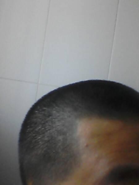 剃光头后 怎样让长出来的头发 发质变好 要快速有效的图片
