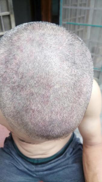 四五十岁左右男士,头皮上有红点,头皮屑很多,头发一干图片