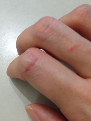 手被水笼头金属划伤了,伤口不深,就划破点