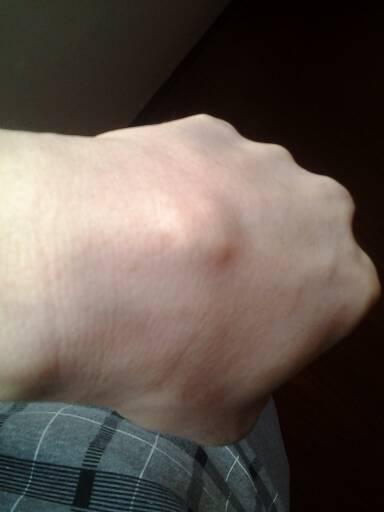 搜索手腕腱鞘炎囊肿看什么科图片