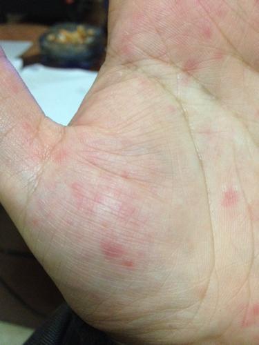 手掌起红点,有刺痛感,还会蜕皮 几乎每年都是这个季节出现,又痒图片