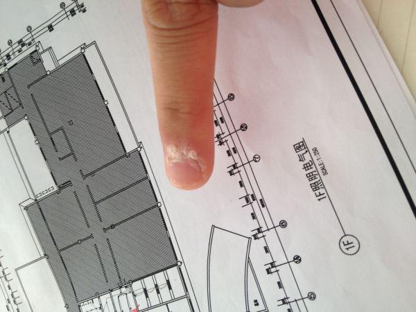 手指甲上方硬皮怎么办图片