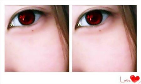 眼睛上有痣