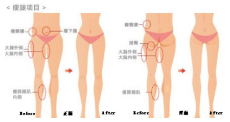 溶脂针能瘦腿吗