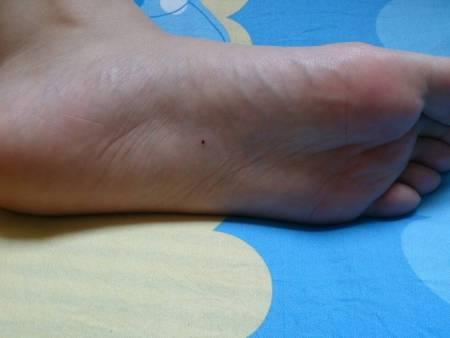 右脚心有痣代表什么