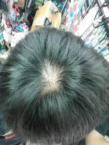 头顶漩涡处和发迹线处头发脱落图片