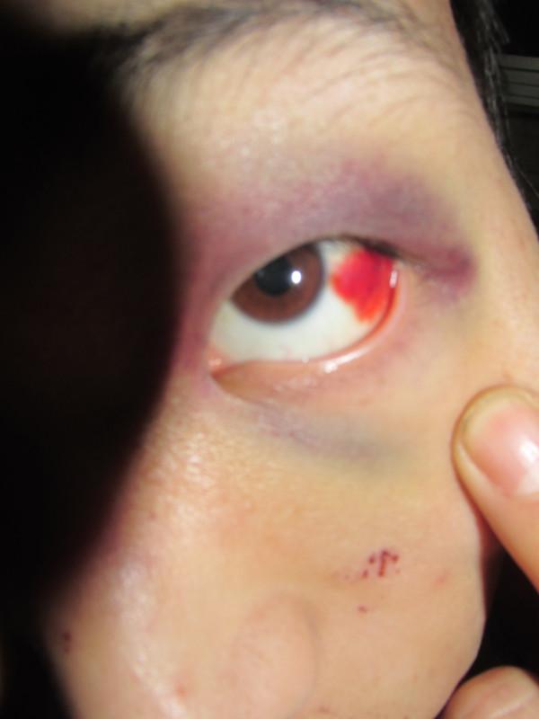 眼睛充血_眼睛打架充血了眼睛打架充血医生开